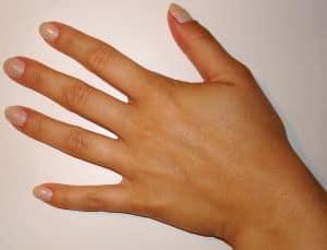 Hautpilz kann an Händen, im Gesicht, am Fuß und am ganzen Körper auftreten. Hausmittel bekämpfen ihn zuverlässig.