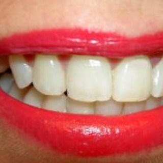 gegen Zahnschmerzen