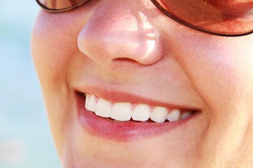 Zähne bleichen - Hausmittel helfen!