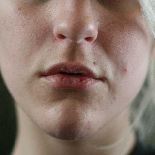 Spröde & rissige Lippen: Hausmittel gegen trockene Lippen
