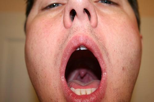 Was Hilft Gegen Halsschmerzen Hausmittelhexe