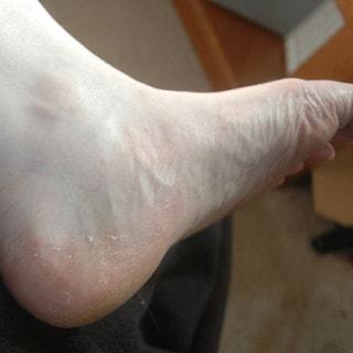 Fußpilz: Hausmittel gegen Fußpilz