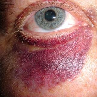 Veilchen: Hausmittel gegen blaues Auge