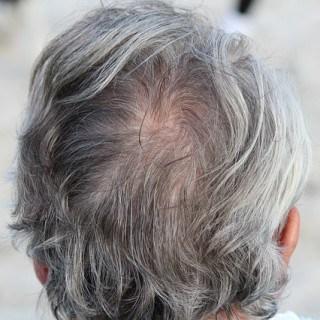 Hausmittel gegen graue Haare