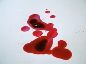 Eingetrocknete Blutflecken sind schwieriger zu reinigen als frische