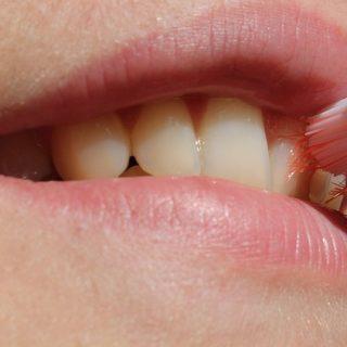 Mit diesen Hausmittel und Tipps Zahnfleischbeschwerden natürlich heilen