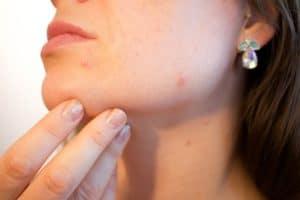 Eine Haarbalgentzündung im Gesicht kann mit einfachen Hausmitteln schnell behandelt werden