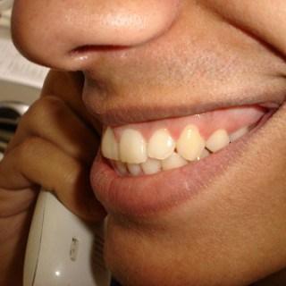 Zahnfleischentzündung Hausmittel